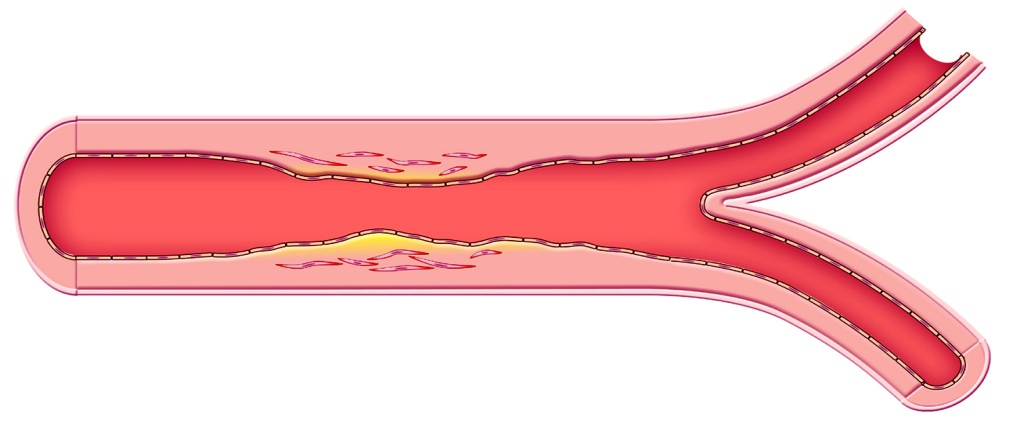 Atherosclerosis (narrowing) of an artery